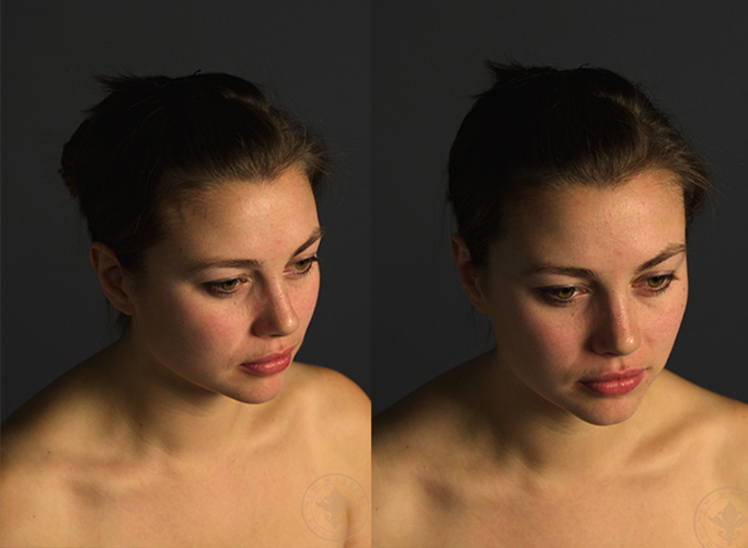 Lillias: Head Turnarounds 2